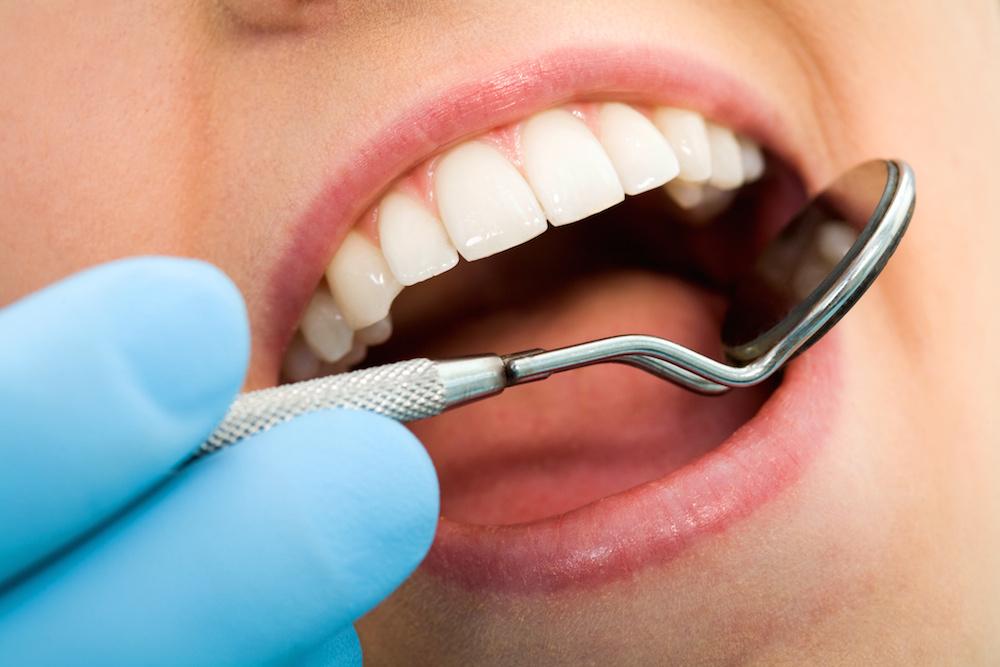Zubní hygiena 1
