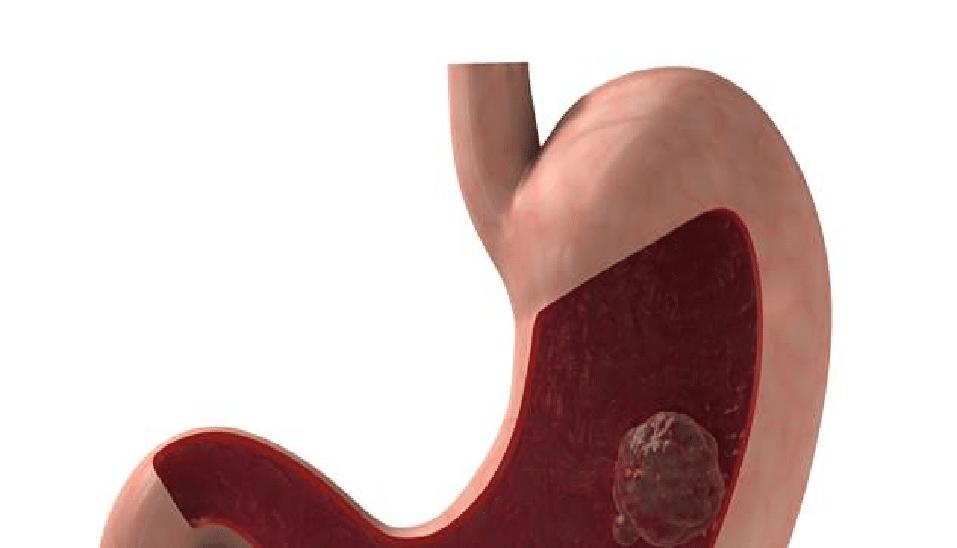 karcinom jícnu